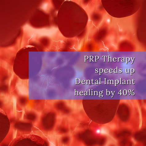 platelet rich plasma prp brighton implant clinic