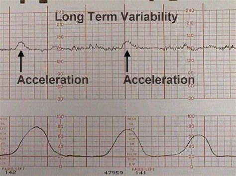 pattern of heart rate variability nursing student chronicles weeks 2 3 and 4 enjoyable