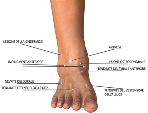 dolore alla caviglia interna dolore anteriore dolore della caviglia