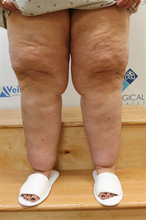 Lipedema Centers Works With Insurers To Gain Coverage For