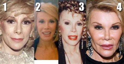age reducing makeovers joan rivers before and after plastic surgery failed surgery