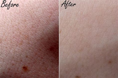 Treatment Laser Pores best treatment for acne rosacea shrinking pores on your