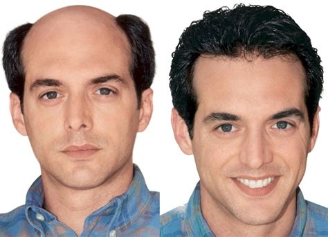 hair replacement system image