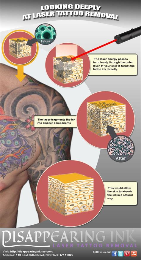 tattoo disappearing cream 68 best black tattoo removal images on pinterest tattoo