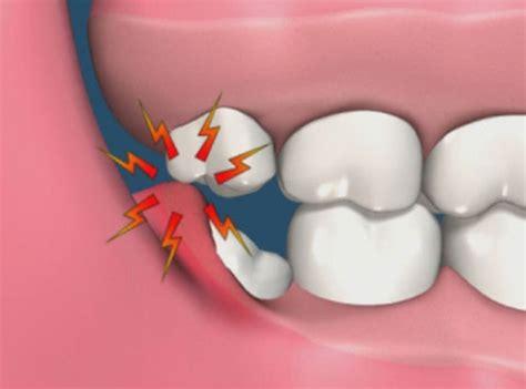 wisdom teeth do you have it dentistwinnipeg