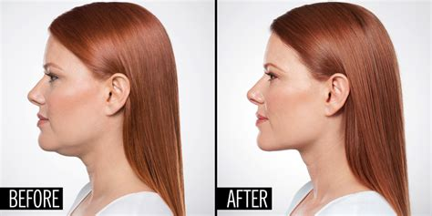haircut to hide swollen jaw tacoma laser clinic eliminate your double chin with