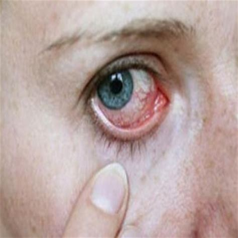 eye infection treatment 5 remedies for eye infection search herbal home remedy
