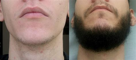 rogaine before and after pictures good or bad does rogaine really help grow a beard