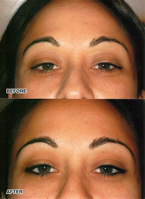 eyelid tattoos cosmetic tattooing le corte clinic