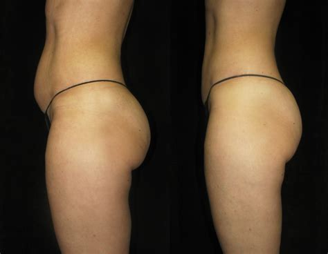 Does Red Light Therapy Work Fairwood Health Amp Body Transition Flattens Fat With Lipo