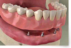 protesi dentarie mobili di ultima generazione protesi dentale fissa su impianti dentali in titanio