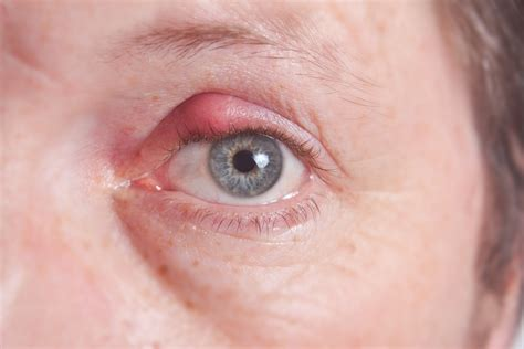 expert suggested ways to prevent eye pimple or stye yabibo