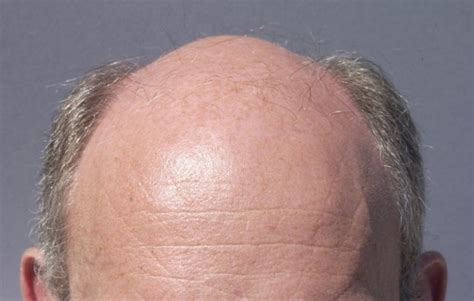 receding definition recede definition what is