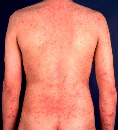 allergic dermatitis gut brain healing with professor sundardas naturopath homoepath alternative
