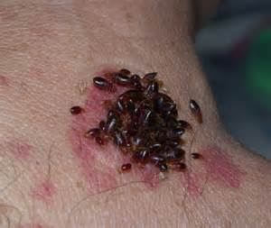 prevent bed bugs bed bug bites treatment and prevention how to prevent bed