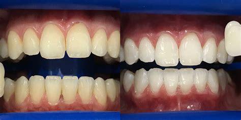 teeth whitening long jetty teeth whitening central coast