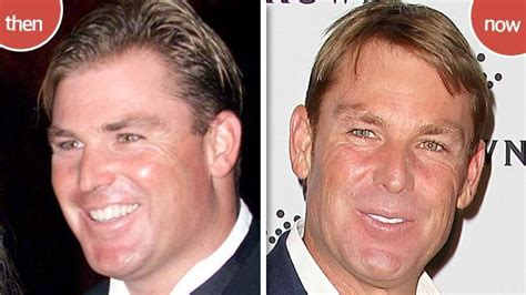 shane warne hair transplant how do they keep looking so good a peek at some of our