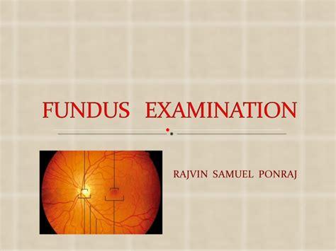 fundus exam findings fundus examination