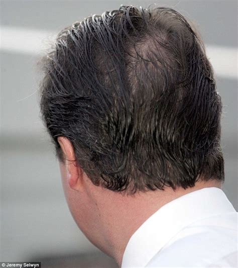 hair style for bald spot and thinning hair andrew pierce was horrified to discover he had thinning