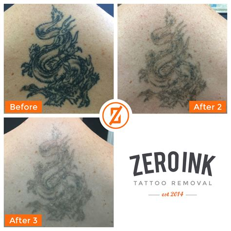 how much does tattoo removal cost uk zero ink laser removal southton