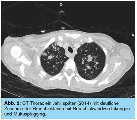 pseudomonas im stuhl fallbericht zystische fibrose schwangerschaft und