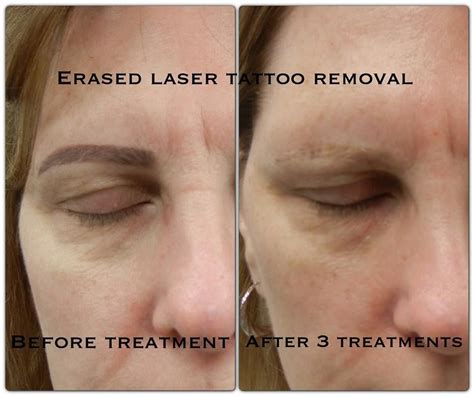 laser eyebrow tattoo removal laser removal permanent makeup eyebrow mugeek