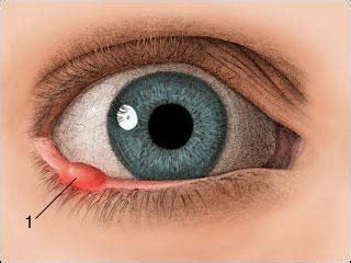 Obat Mata Bintitan Bagian Bawah 6 obat mata bintitan alami yang manjur dan uh