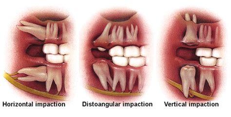 centennial greenwood dentist wisdom teeth