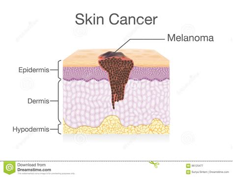 human skin background stock image image of melanoma 61054117 spread illustrations vector stock images 17393 pictures to from