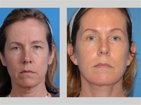 photo gallery before and after cosmetic surgeon in the plastic surgery before and after photo gallery uw health