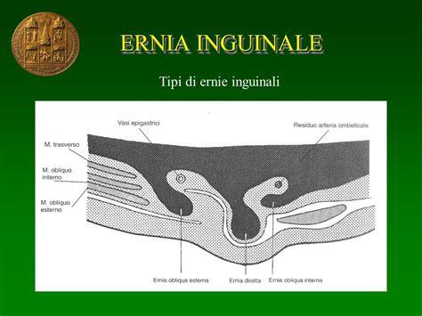 ernia inguinale interna semeiotica e fisiopatologia delle ernie ppt
