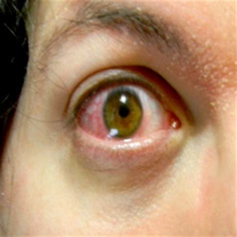 eye infection treatment eye infection herbal remedies treatment and cure home remedies supplements