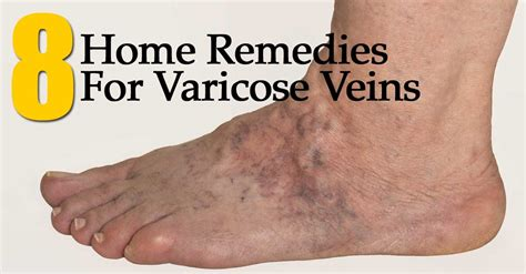8 home remedies for varicose veins