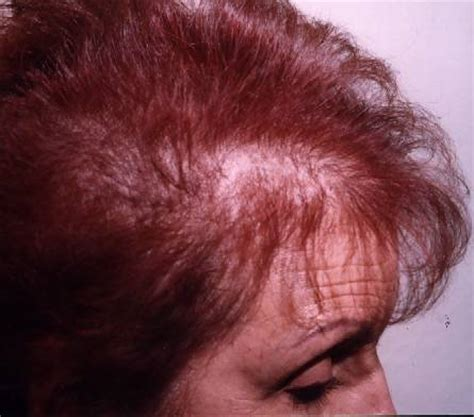 scalp color for thinning hair more info thinning hair powder