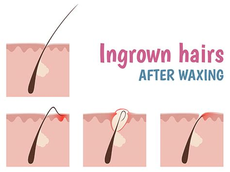 ingrown hair diagram home remedies to get rid of ingrown hair boldsky