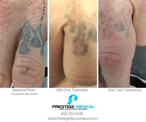 after tattoo removal care laser removal prestige rejuvenation center