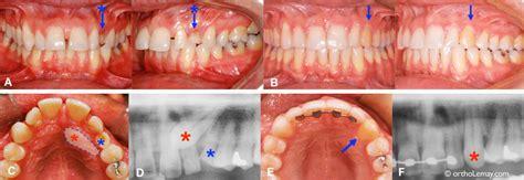 impacted canine orthodontics adult  ray  ac