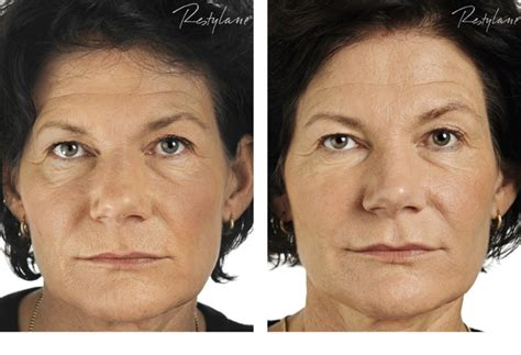Where Your Wrinkle Filler Gets Injected Podcast by Restylane Wrinkle Filler Injection Epionebh