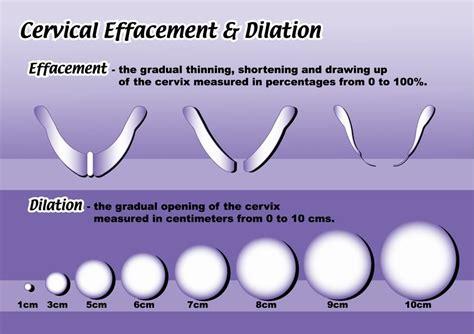 cervix diagram during pregnancy pic diagram of dilation and cervical effecement