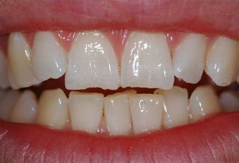 tooth wear  christopher sale dentistry christopher