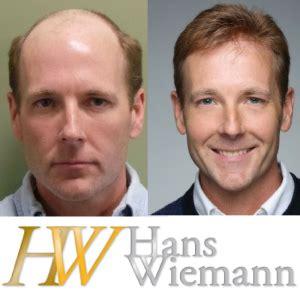 new technology in hair restoration 2014 hair restoration for men vs women hans wiemann