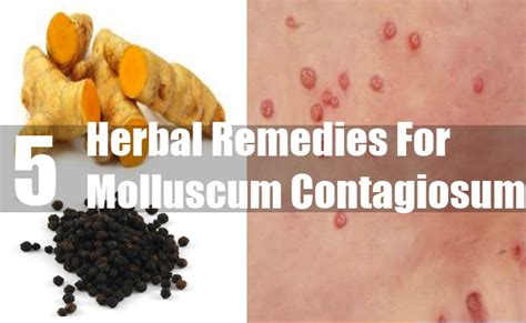 5 molluscum contagiosum herbal remedies