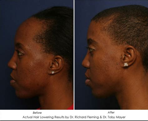 high hairlines a firm of beauty in women women suffering from high hairlines have hope ahb