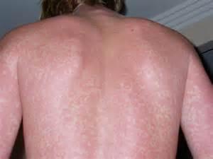 tanning bed rash photos