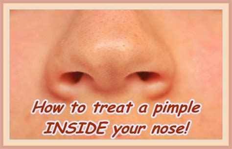 nose treatment how to treat a pimple in nose inside nostril helpful skincare advice