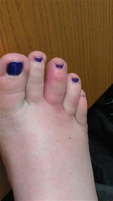 swollen toe toe swollen and