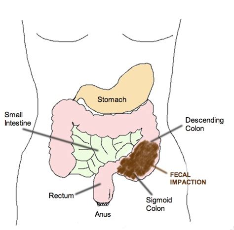 Impacted Stool Symptoms by Fecal Impaction