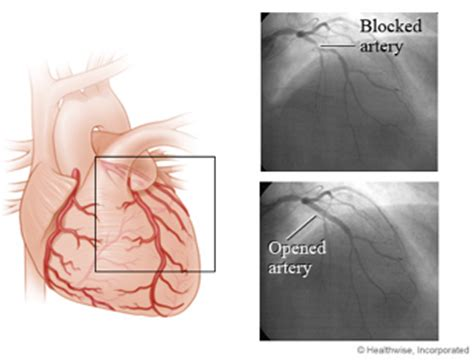 blocked arteries and open surgery coronary angioplasty stenting coronary artery atherectomy