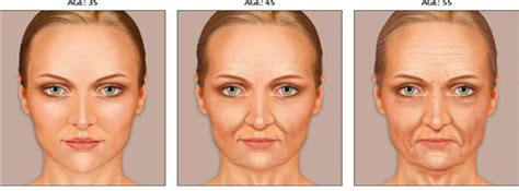 7 Ways To Skin Ageing by Anti Ageing Causes And Treatments