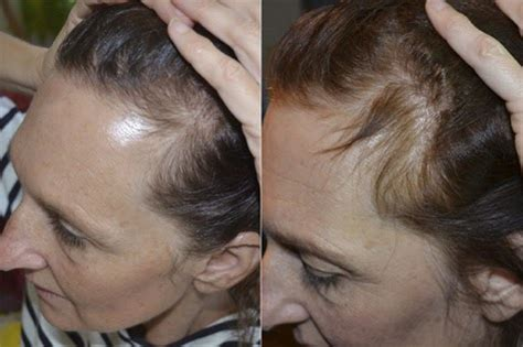 how to use lavender to treat hair loss ehow how to stop hair loss and regenerate new hair with